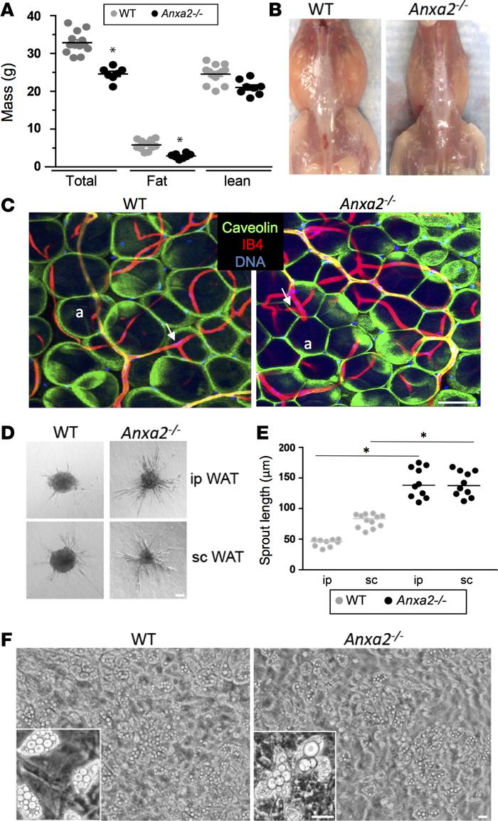 ANX2 is required for adipocyte hypertrophy but not for adipogenesis. (A)...