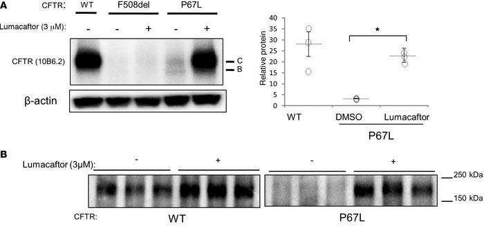 The P67L mutant confers reduced expression of mature cystic fibrosis tra...