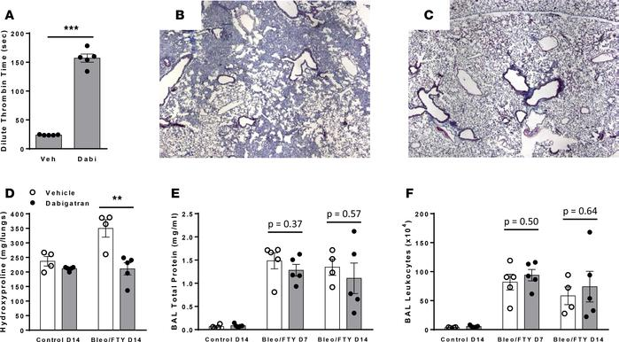 Thrombin inhibition attenuates fibrosis in a vascular leak–dependent mod...