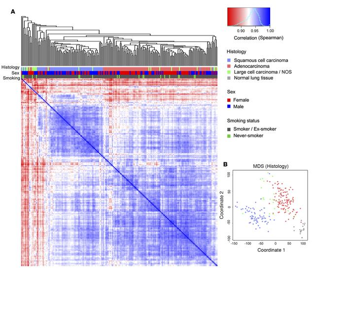 The transcriptomic profile of non–small-cell lung cancer (NSCLC). (A) Hi...