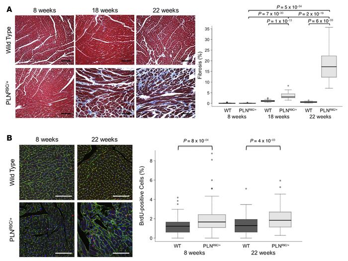 PLNR9C/+ mice develop increased cardiac fibrosis and nonmyocyte cell pro...