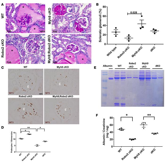 Robo2 deficiency protects mice from DOCA-salt-uninephrectomy–induced po...