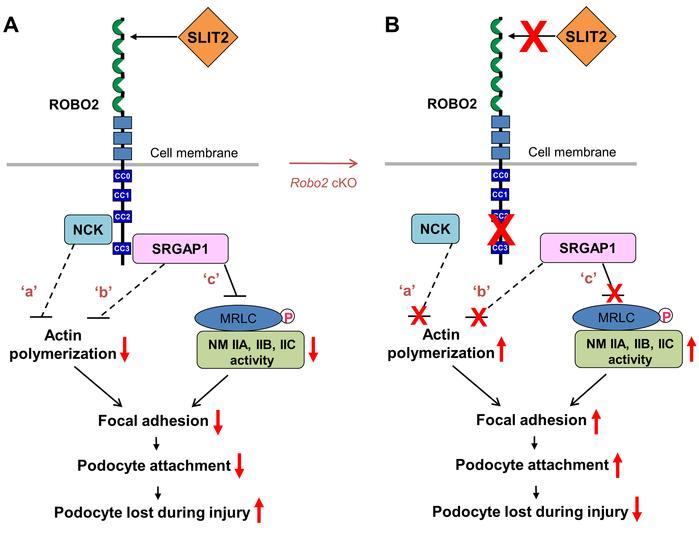 The proposed model: SLIT2/ROBO2 signaling destabilizes podocyte adhesion...