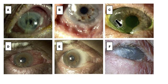 Ocular mucous membrane pemphigoid (OMMP): Clinical spectrum and morbidit...