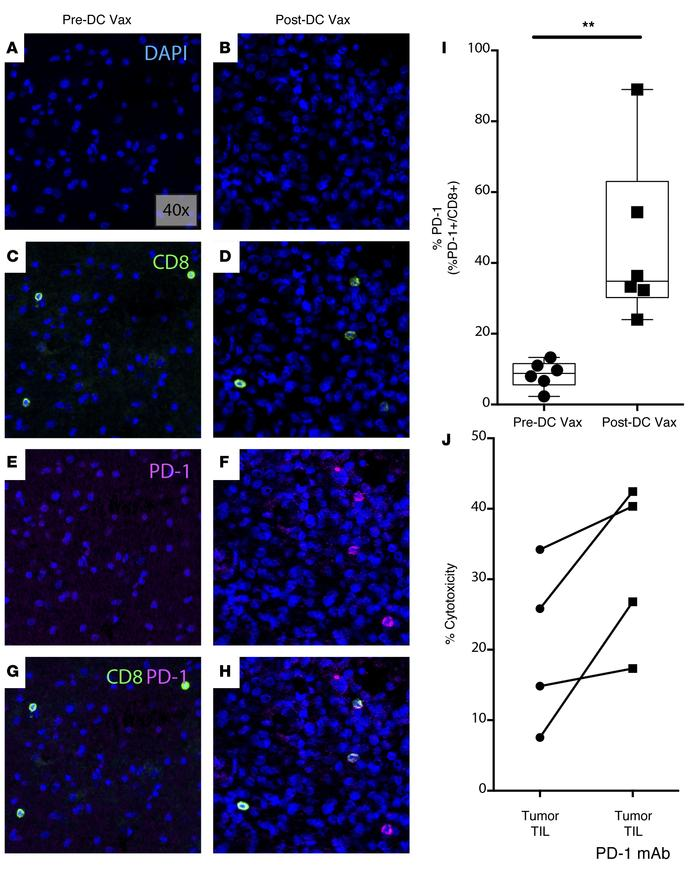 Ex vivo PD-1 blockade enhances TIL cytotoxicity against human GBM. (A an...