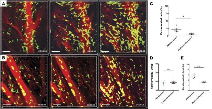 Intravital 2-photon imaging reveals impaired neutrophil trafficking in h...