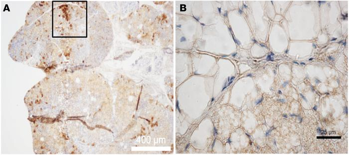 Representative immunohistochemical detection of uncoupling protein 1 in ...