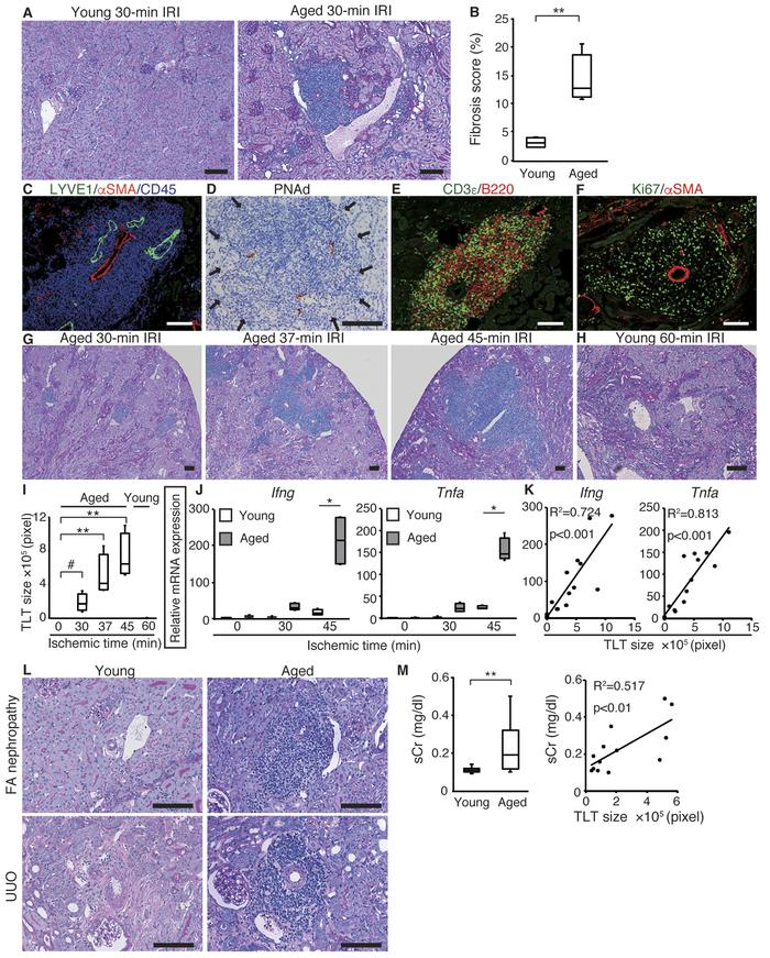Aged mice develop multiple renal tertiary lymphoid tissues (TLTs) after ...