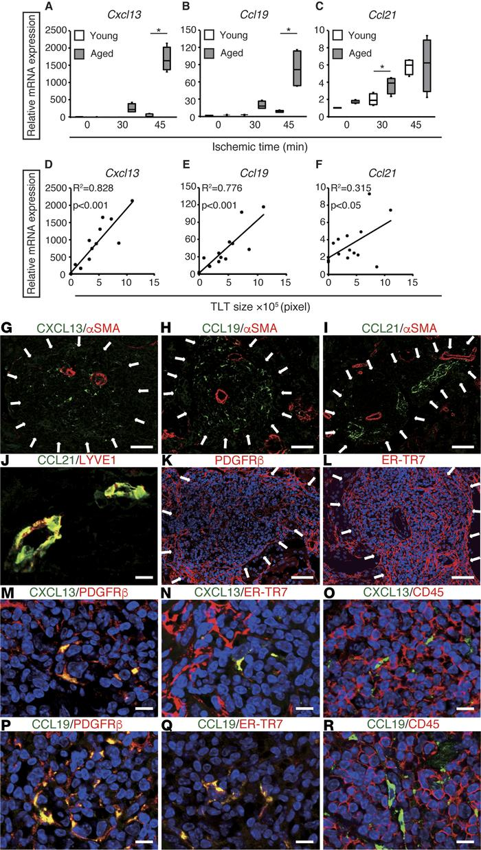 Fibroblasts inside tertiary lymphoid tissues (TLTs) produce CXCL13 and C...