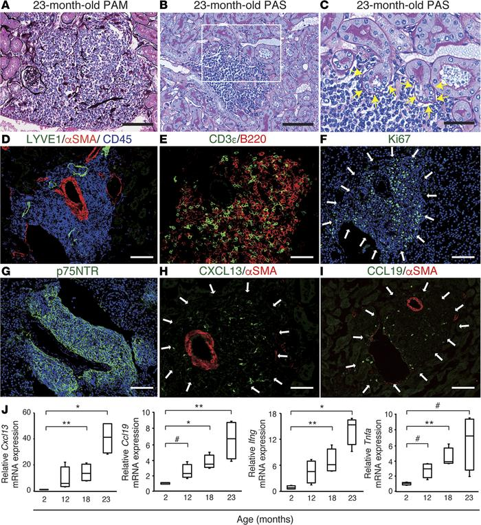 Superaged mice spontaneously develop renal tertiary lymphoid tissues (TL...
