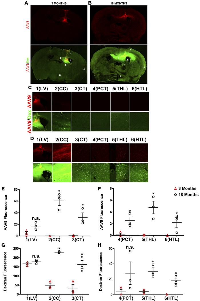 Comparison of AAV vector accumulation within juvenile and aging mouse br...