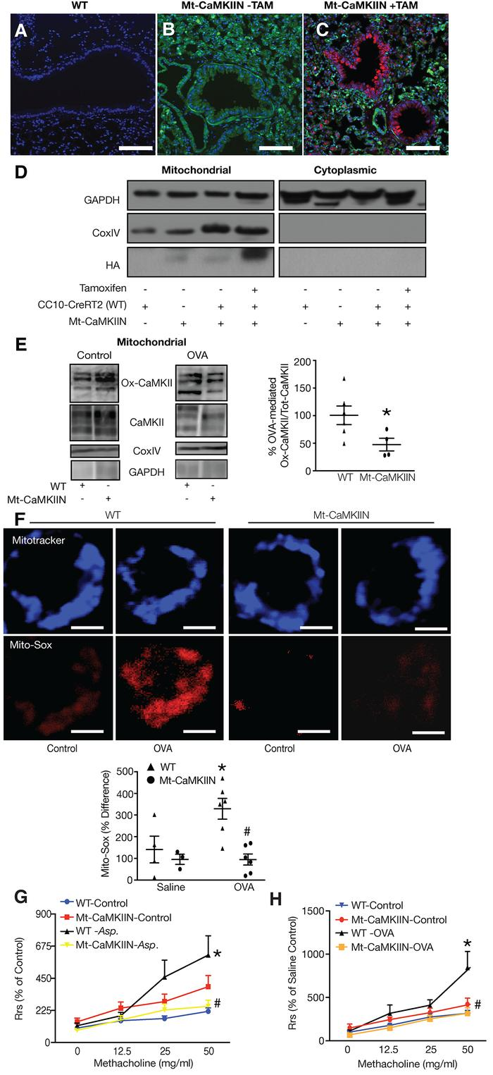 Mitochondrial CaMKII inhibition in respiratory epithelium attenuates air...
