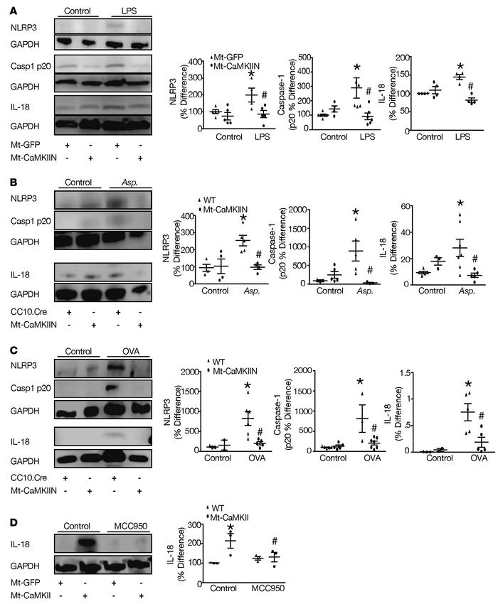 Epithelial Mt-CaMKII inhibition reduces expression of inflammasome prote...