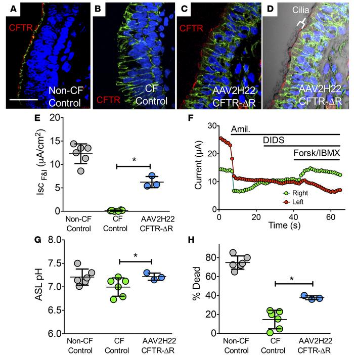 AAV2H22-CFTRΔR transduces pig airway epithelia in vivo. (A–G) Gut-correc...