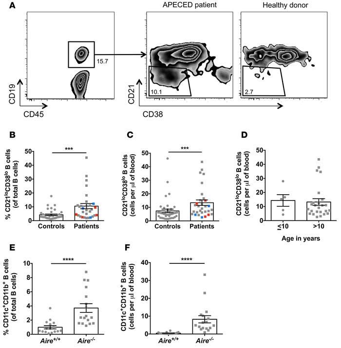 Expansion of CD21loCD38lo B cells in the peripheral blood of autoimmune ...