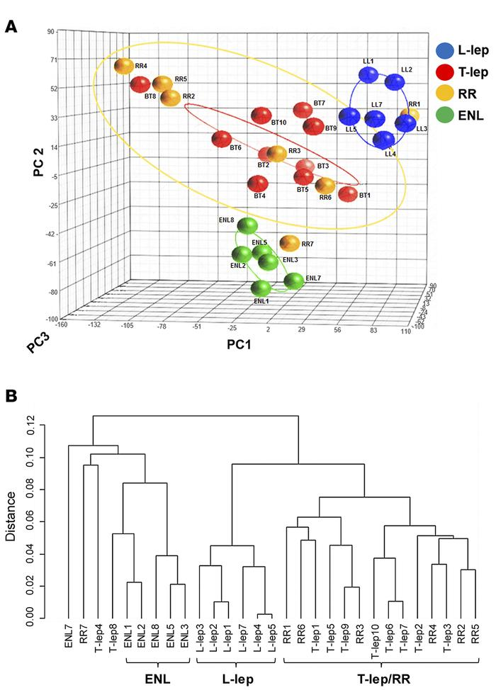 Differential distribution of leprosy subtypes. (A) Unsupervised principa...