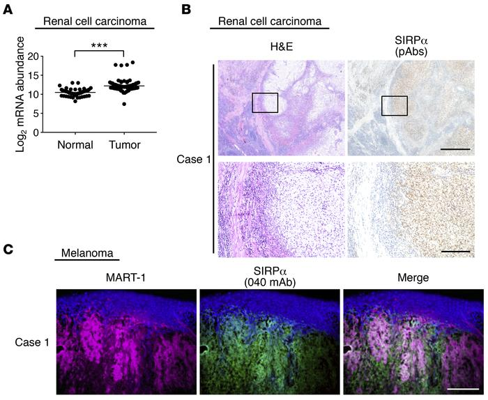 High level of SIRPα expression in human renal cell carcinoma and melanom...