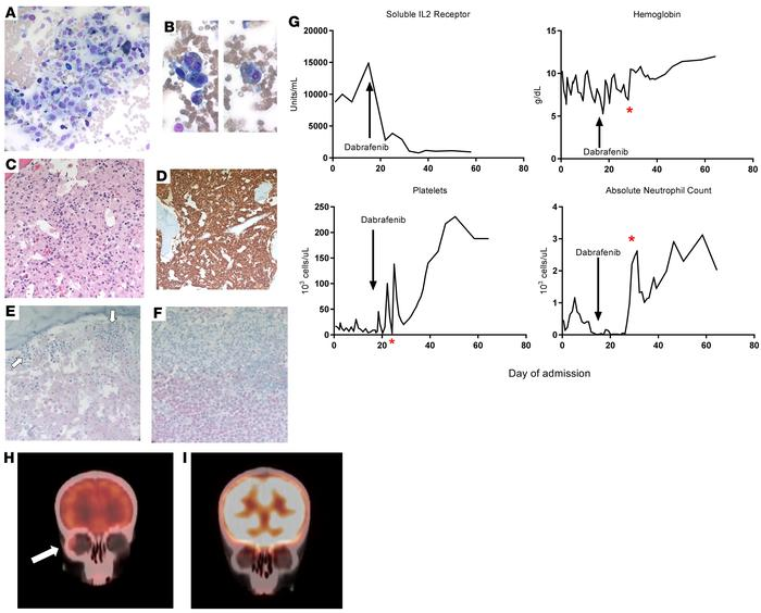 Mutant BRAF is detected in non-Langerhans bone marrow histiocytes and re...
