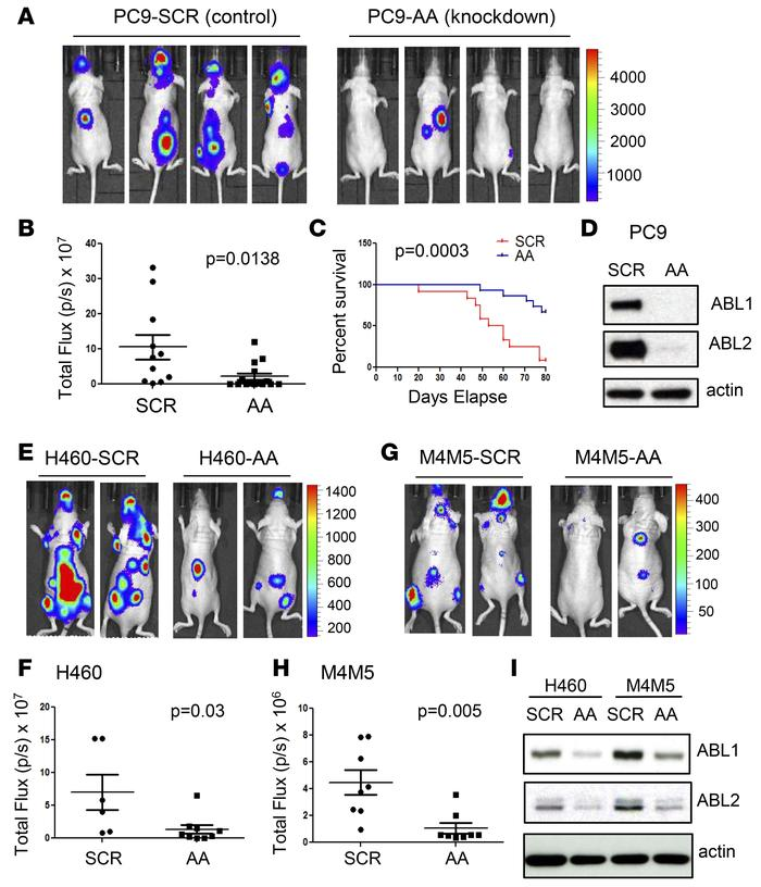 Depletion of ABL1 and ABL2 suppresses non–small cell lung carcinoma meta...