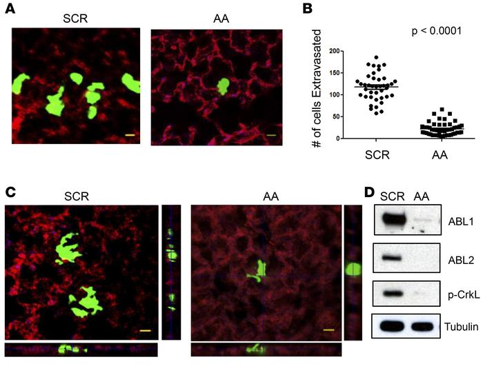 ABL kinases promote tumor cell extravasation into the lung parenchyma. (...