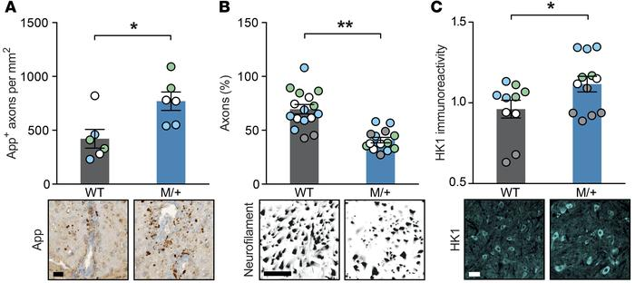 Enhanced NaV1.2 activity results in increased axonal injury and neuronal...