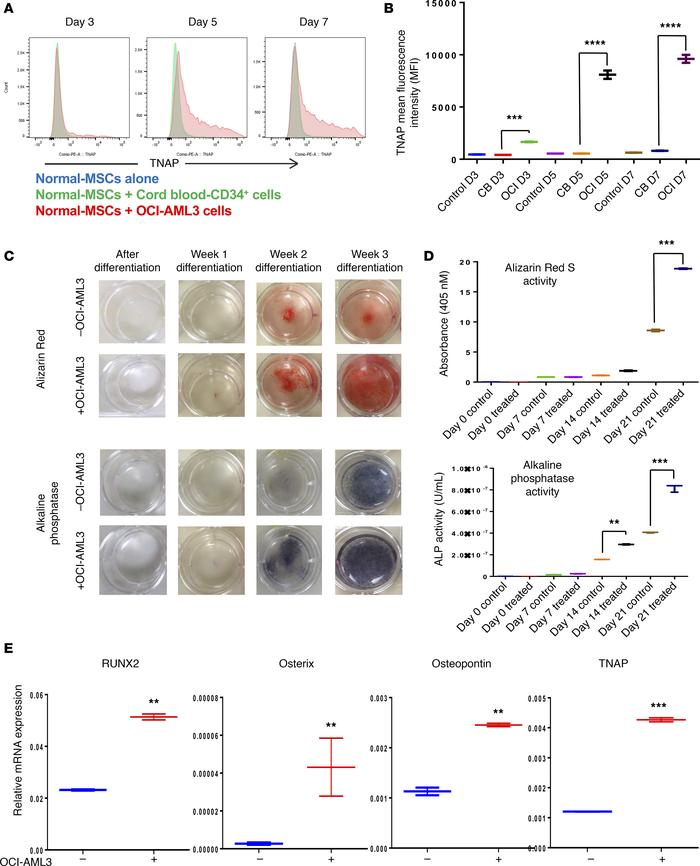 AML cells induce osteogenic differentiation in N-MSCs. (A) N-MSCs were c...