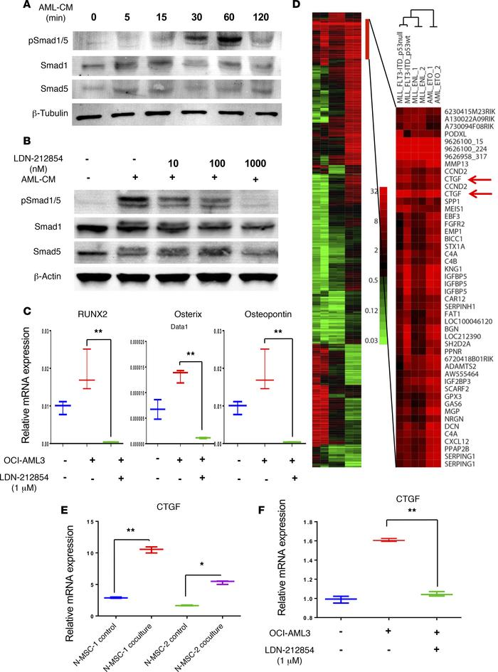 BMP signaling mediates AML-induced osteogenic differentiation and induce...