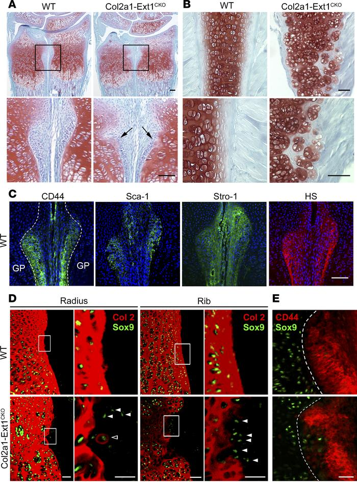 Aberrant differentiation of perichondrial cells in Col2a1-Ext1CKO mice. ...
