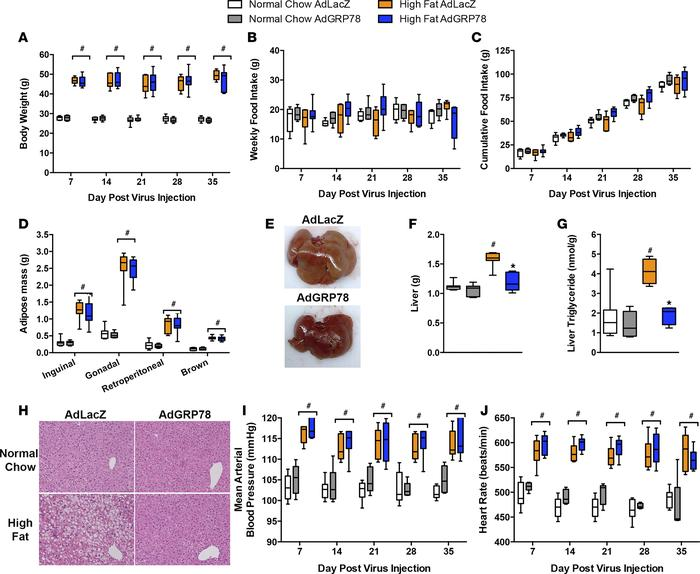 Selective reductions in SFO-ER stress rescue obesity-induced hepatic ste...