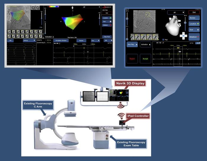 Navik 3D in the context of the electrophysiology lab. Navik 3D utilizes ...