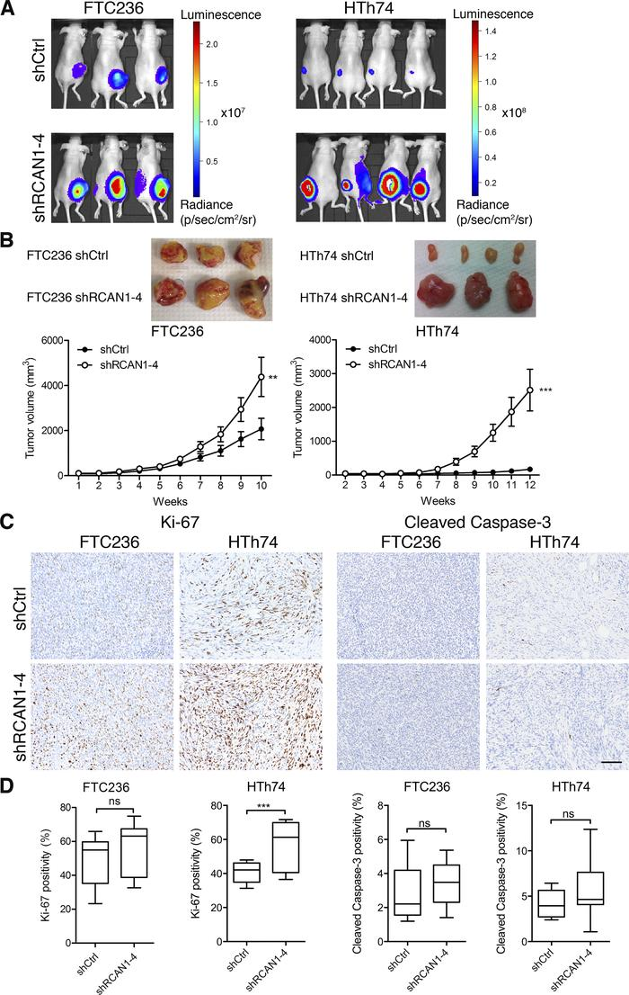 RCAN1-4 knockdown promotes tumor growth in vivo. (A) shCtrl and shRCAN1-...