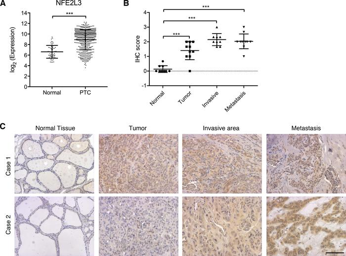 NFE2L3 is overexpressed in thyroid cancer samples. (A) NFE2L3 expression...