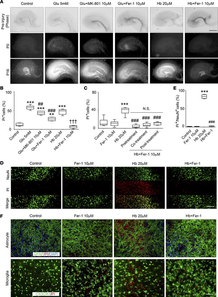 Fer-1 inhibits Hb-induced neuronal death in OHSCs. (A and B) Organotypic...