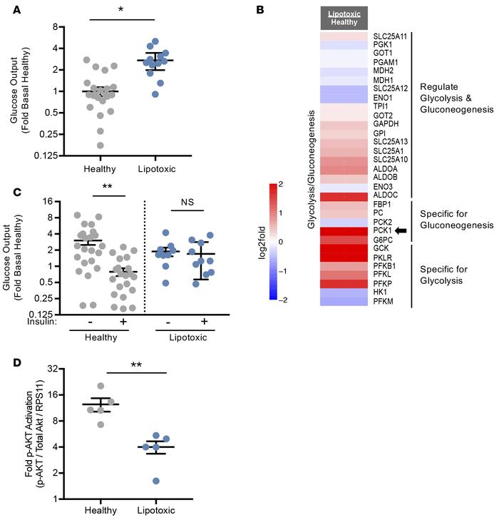 Glucose utilization and synthesis is altered in the human liver lipotoxi...