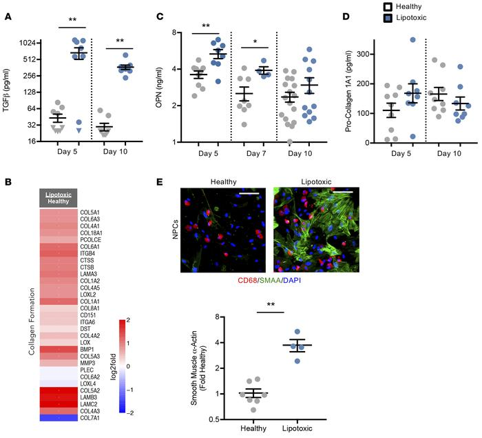 Evidence for extracellular matrix remodeling in the human liver lipotoxi...