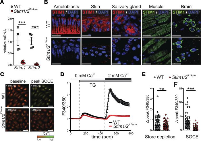 STIM1 and STIM2 mediate store-operated Ca2+ entry in ameloblast cells. (...
