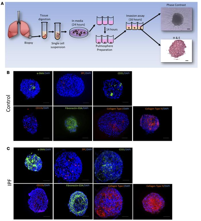 Pulmospheres are 3D structures made of multiple cell types and extracell...