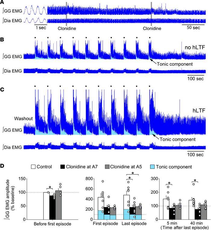 Activation of α2-adrenoceptors on A7 or A5 neurons impaired obstructive ...