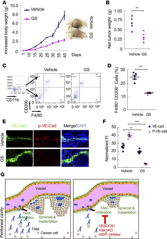 Jci Insight Ask1 Dependent Endothelial Cell Activation Is Critical In Ovarian Cancer Growth And Metastasis