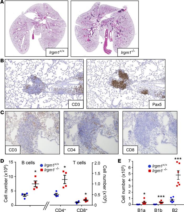 Peribronchovascular lymphocytic infiltrates in the Irgm1–/– lung. (A) He...