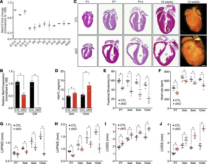 Deletion of Med12 in cardiomyocytes impairs cardiac function. (A) Med12 ...