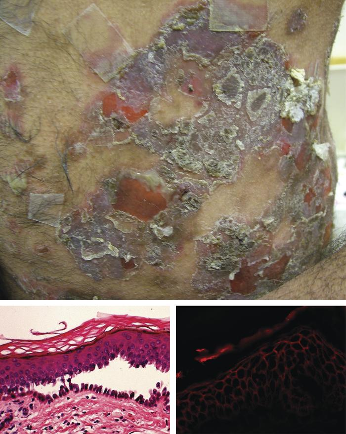 Diagnosis of pemphigus vulgaris. Wide-spread skin blisters and crusted e...
