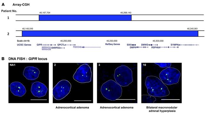 Genomic 19q13 duplications in adrenal lesions of 3 patients with glucose...