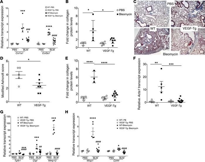 Transgenic VEGFA overexpression reduced bleomycin-induced lung fibrosis....