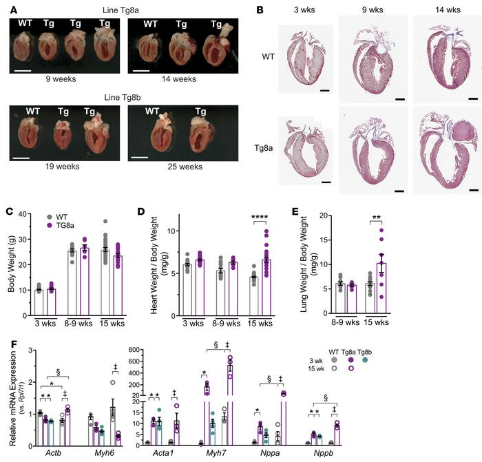 Cdk8-transgenic mice develop dilated cardiomyopathy and pulmonary edema....