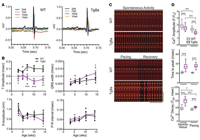 Cdk8 overexpression induces cardiac conduction defects and cardiomyocyte...
