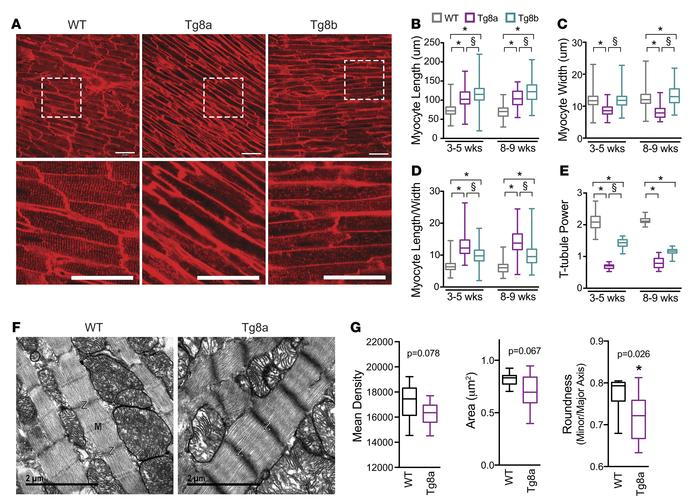 Structural analyses reveal that cardiomyocytes from Cdk8-transgenic mice...