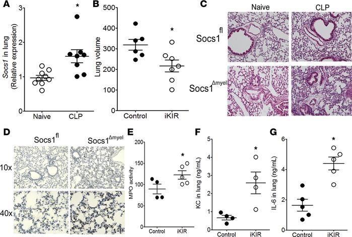 SOCS1 inhibits lung injury during sepsis. (A) Socs1 expression in the lu...