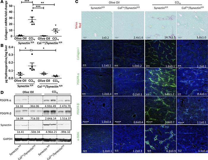 Synectin deletion from HSC attenuates hepatic fibrogenesis in vivo. Mice...