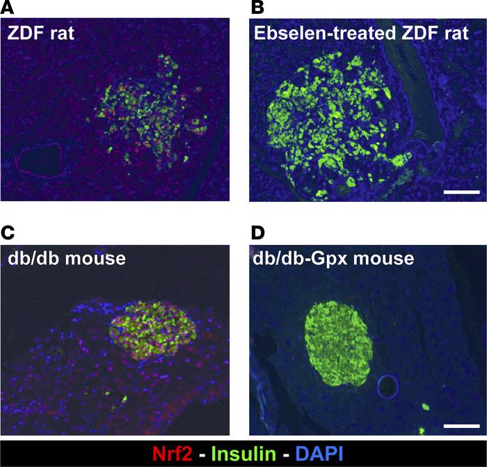 Nrf2 staining in 2 additional diabetic animal models. Pancreatic section...